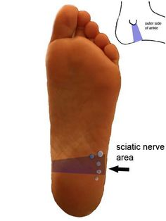 Reflexology Points for Sciatica I find using reflexology points along with applying essential oils t