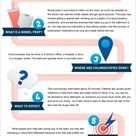 7 Things to Know About Getting a Colonoscopy #ColonCancer