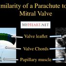 The mitral valve is very similar to a parachute! http://blog.myheart.net/2013/05/01/mitral-valve-pro