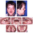 Apert syndrome is a genetic disorder characterized by the premature fusion of skull bones.