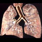 Pneumocystis pneumonia (PCP) is an atypical pulmonary infection