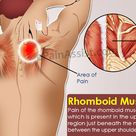 Pain of the rhomboid muscle is the pain