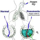 Difference Between Pneumonia and Pleurisy
