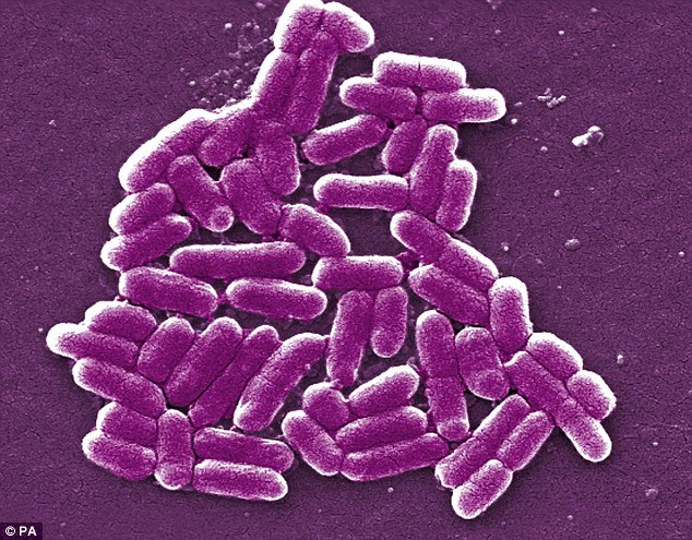 Antibiotic-resistant bacteria, such as this strain of E. coli are becoming more common (file picture