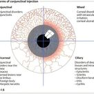 Forms of conjunctival injection