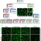 Importance of the dense fine speckled pattern on HEp-2 cells and anti-DFS70 antibodies for the diagn