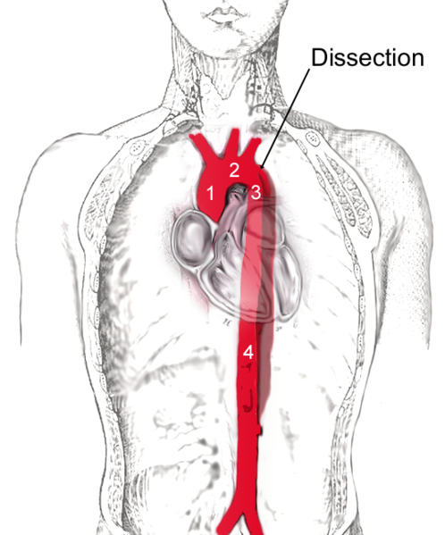 Aortic dissection illustration