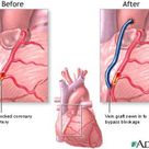 Bypass Surgery: Different Types of Bypass Surgery Explained: Coronary Artery Bypass Grafting (CABG)