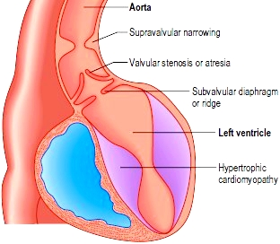 Aortic stenosis is obstruction to systolic left ventricular outflow across the aortic valve.