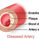This is a diagram showing the inside of the artery and what could lead to diabetes, heart diseases,