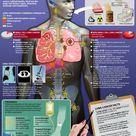 Lung Cancer Facts & Statistics