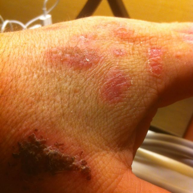 Very painful Pemphigus on the hand