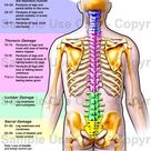 Effects of Nerve Damage along the Spinal Cord. Source; The Merck Manual of Medical Information USA T