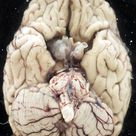 human brain-- check out that cerebellum