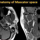 Anatomy of Mascator space