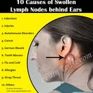 Causes of swollen lymph nodes