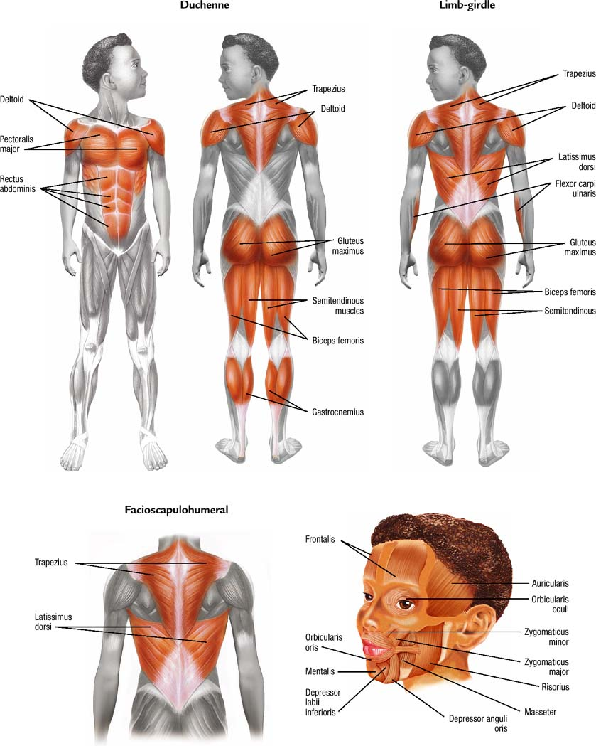MUSCLES AFFECTED IN DIFFERENT TYPES OF MUSCULAR DYSTROPHY. Pinned by SOS Inc. Resources @sostherapy.
