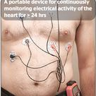 The Holter's most common use is for monitoring ECG heart activity