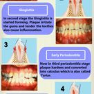5 Stages Of Periodontal Disease