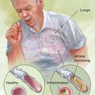 What is acute bronchitis?