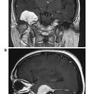 Image result for middle cranial fossa meningioma