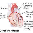 Right Coronary Artery: supplies right side of heart and inferior left ventricle