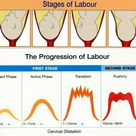 Stages of Labor and Delivery   Understanding the Stages of Labour is Laborious