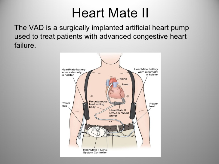 Heart Mate II lvad basic user updated per moses cone