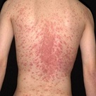 Pityriasis rosea is a common rash that is seen primarily in the spring and fall