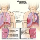 Figure A shows the location of the lungs, airways, pleura, and diaphragm (a muscle that helps you br