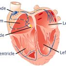 Origin of ectopic beats: Premature contractions (ectopics) are classified by their origin atrial (PA