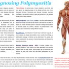 Diagnosing Polymyositis
