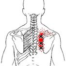 rhomboid major and minor muscle trigger points and referred pain