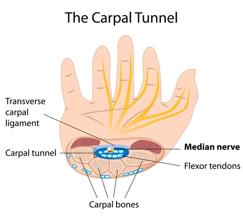 What are symptoms of carpal tunnel? Symptoms usually start off gradually and come along with frequen
