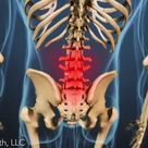Lumbar osteoarthritis is a form of arthritis that occurs in the low back and causes pain, stiffness,