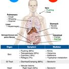 Carcinoid Tumor vs. Carcinoid Syndrome Rosh Review