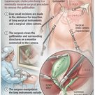 Cholecystectomy is the minimally invasive surgical procedure to remove the gallbladder.