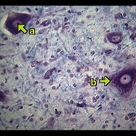 Motor cells in the spinal cord; largest nerve cell
