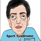 Apert syndrome is a form of acrocephalosyndactyly