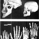 Acromegaly skulls and bones