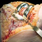 Obese patient's knee replacement