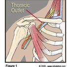 Thoracic Outlet is compression of the nerves, arteries, or veins.