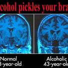 Alcohol pickles your brain.