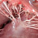 Chordae tendineae (tendinous chords) or heart strings that connect the Muscolopapillare