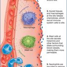 How the inflammatory process begins