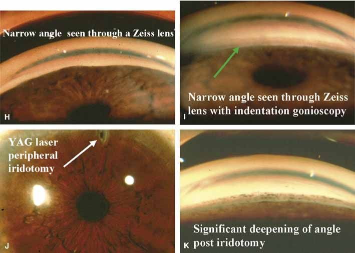 INTERESTING OPHTHALMOLOGY CLINICAL PHOTOGRAPHS