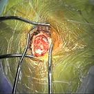 Microvascular Decompression Surgery - Part One