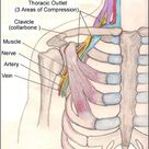 Thoracic Outlet Syndrome- compression