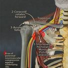 Here's a pic of how the nerves run through the shoulder down the arm.