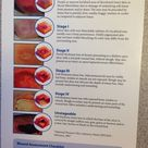 Guidelines for Staging of Pressure Ulcers